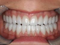 52dental veneers and crown patient 1 after houston implant dentist dr. ronald konig