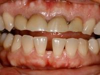 60gum lift and porcelain veneer patient 1 before houston cosmetic dentist dr 0