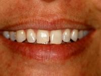 dental bonding patient 1 before houston porcelain veneers dentist dr. ronald konig