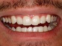 dental bonding patient 2 before houston cosmetic dentist dr. ronald konig