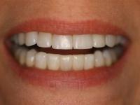 dental bonding patient 4 after houston cosmetic dentist dr. ronald konig 0