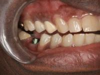 dental implant patient 1 before houston implant dentist dr. ronald konig