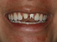 dental implant patient before 2 houston dental implant dentist dr. ronald konig 0
