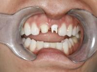 dental implant patient before1 houston dental implant dentist dr. ronald konig 1