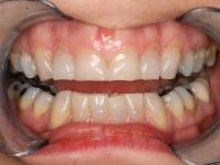dental veneers and crown patient 1 before houston implant dentist dr. ronald konig