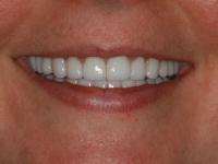 restorative tmj dentist case after1