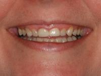 restorative tmj dentist case before.jpg