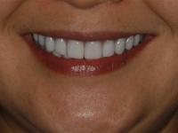 smilemakeover05a2 1