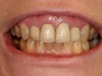 veneers and crowns patient before houston cosmetic dentist dr. konig