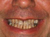 veneers patient 20 before 2 cosmetic dentist dr. konig of houston