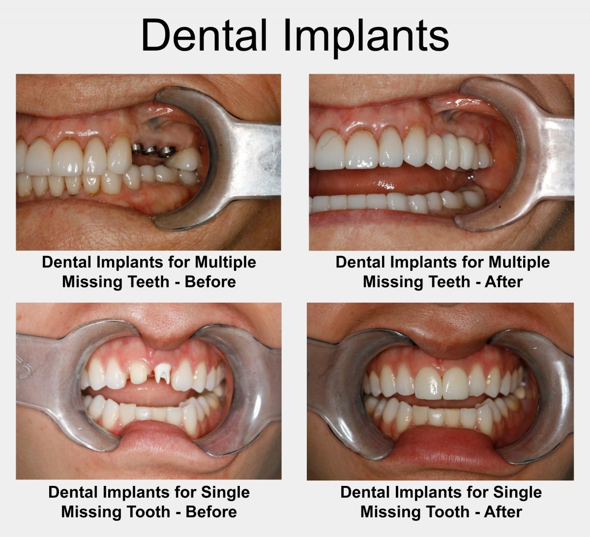 dentalimplants houstondentistdrkonig