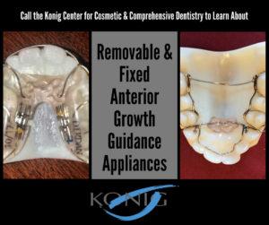 houston anterior growth guidance appliances