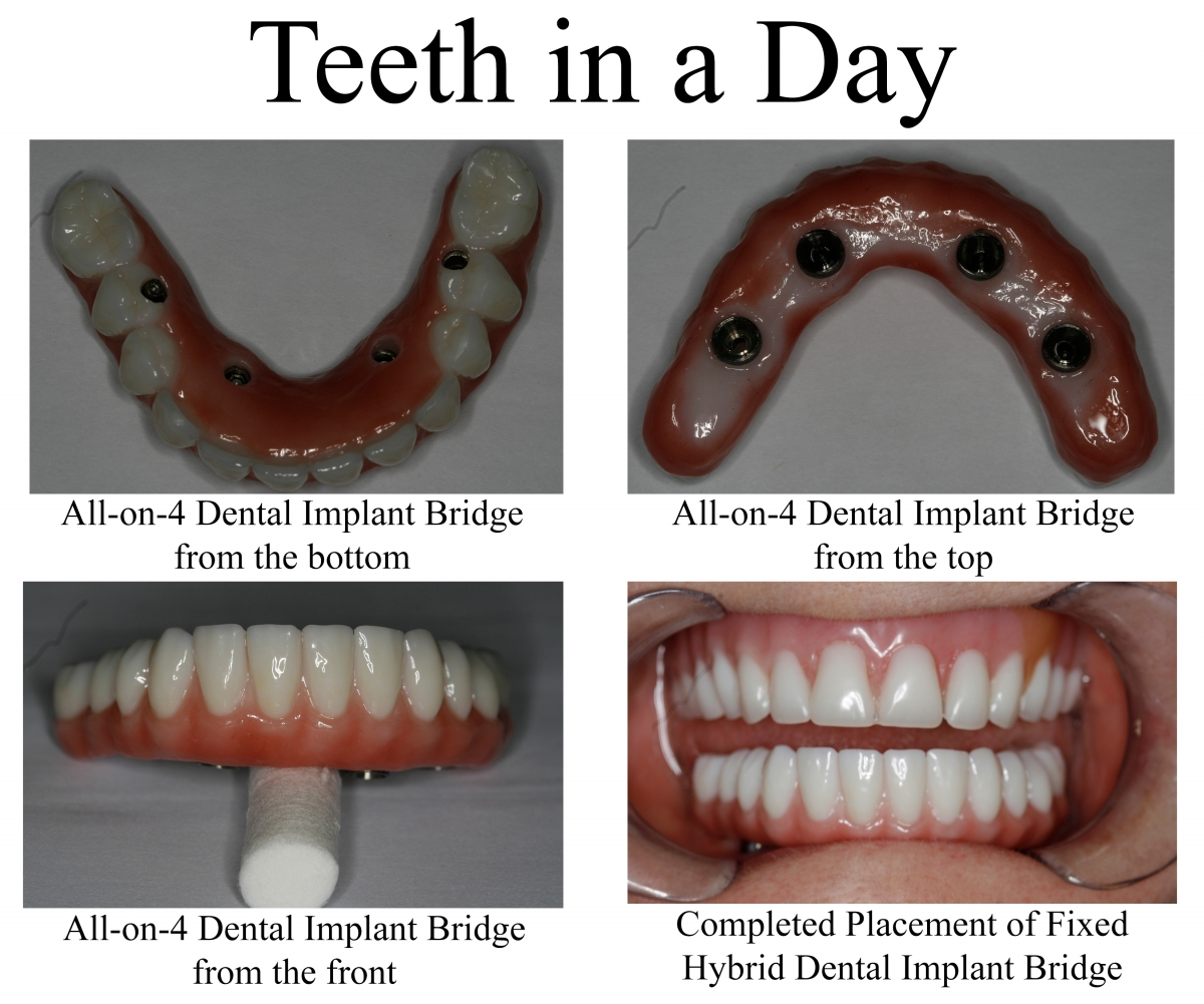 konig teeth in a day dental implants houston