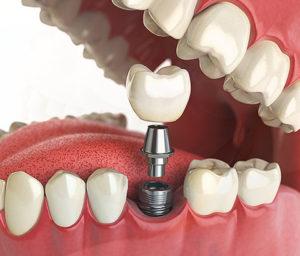service dental implants