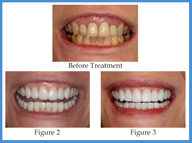 Houston Porcelain Veneer Patient | Dr. Ronald Konig, DDS