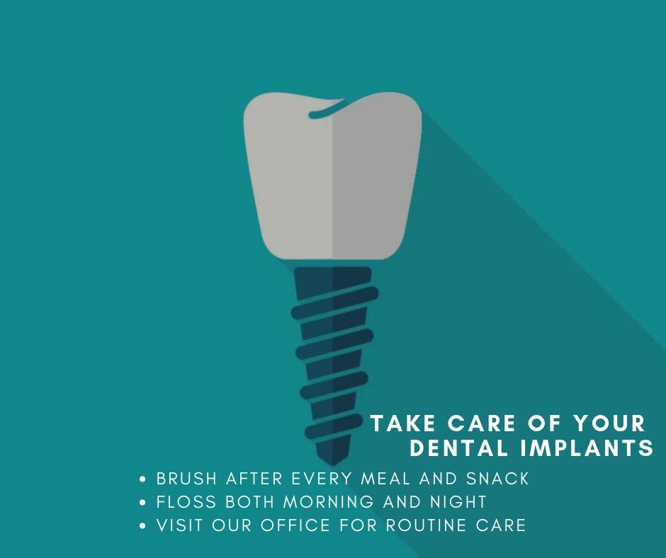 Dental Implant Care | Houston Implant Dentist