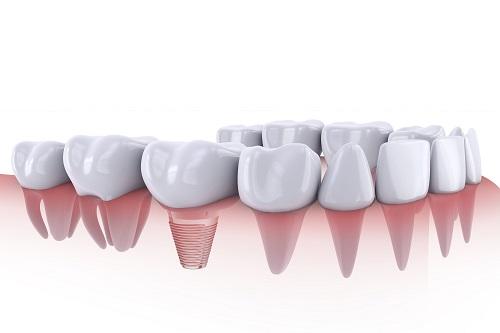 What Dental Implants Look Like | Houston, TX
