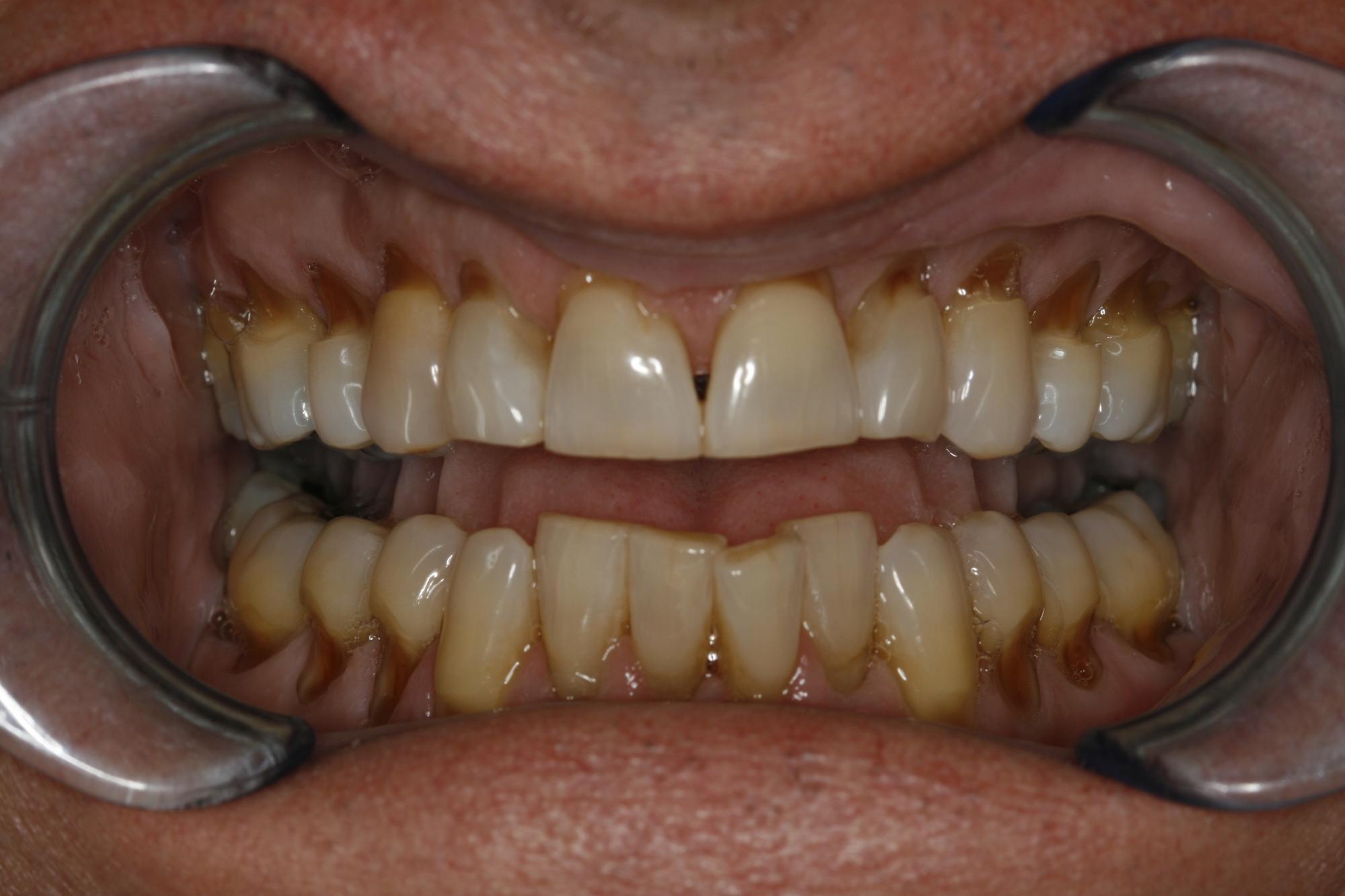 Worn, aged teeth with receding gums