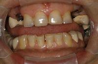 Broken and missing teeth