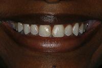 Spaces between front teeth