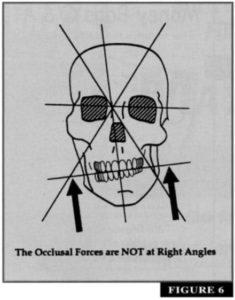 cranial derangement 1