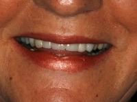 TMJ Dysfunction Treatment