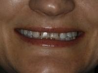 TMJ Dysfunction Treatment Case